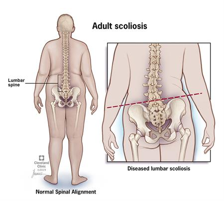 Spine alignment compared to a spine with scoliosis