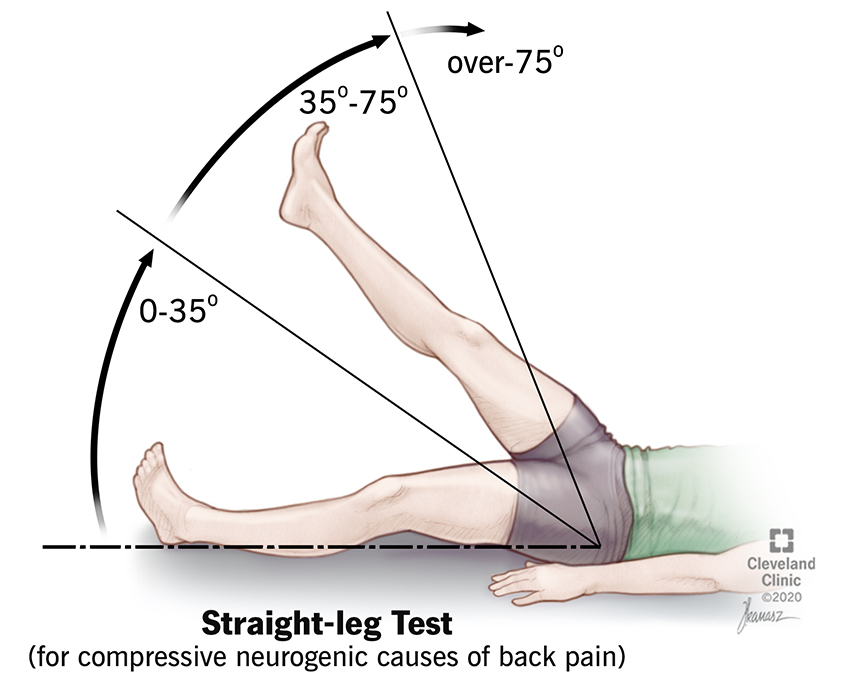 During a straight leg raise test, you'll lie on your back with your legs straight. Your provider will slowly raise each leg and note the point at which your pain begins.