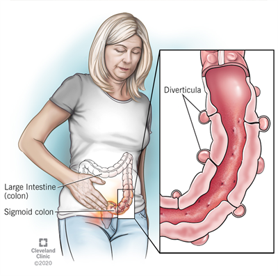 Diverticula are tiny bulges that form in the wall of your colon, mostly in the near last segment of your colon called the sigmoid colon.