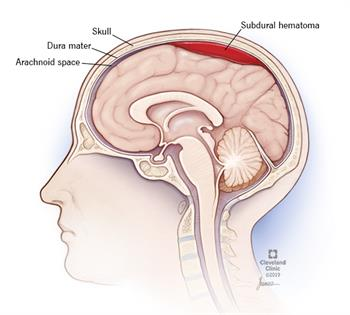 Blood has leaked from a blood vessel and flooded into an area below the dura. The dura is one of three membranes that surrounds and protects the brain tissue, between the brain and the skull.