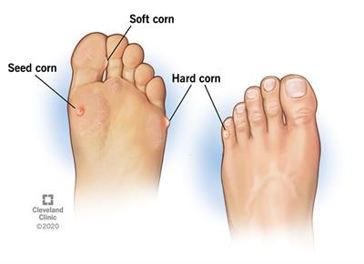 Corns, typically small and round, form on top (hard corns), sides (soft corns) and bottom (seed corns) of your toes and foot.