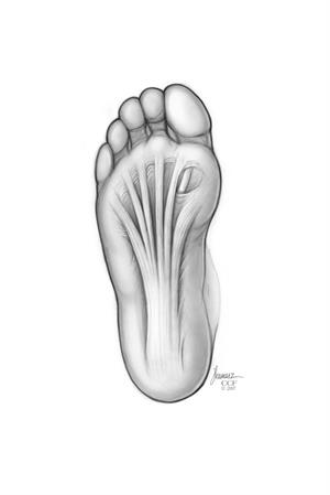 Plantar fascia on the bottom of the foot