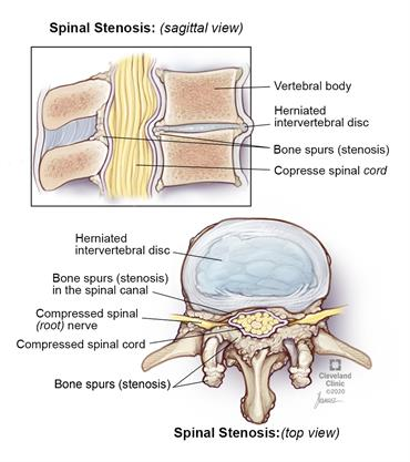 A bulging vertebral disk and bone growths (spurs) on the vertebral bones take up space and therefore narrow the space for your nerve roots and spinal cord.