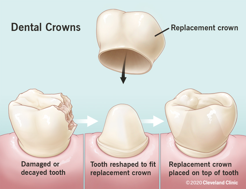 The damaged or decayed tooth is reshaped and a dental crown is placed on top of the tooth.