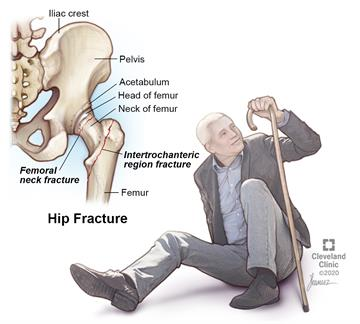 """Hip fracture commonly occurs on the upper femur -- near the """"ball"""" that fits into the hip socket or a few inches below this point."""