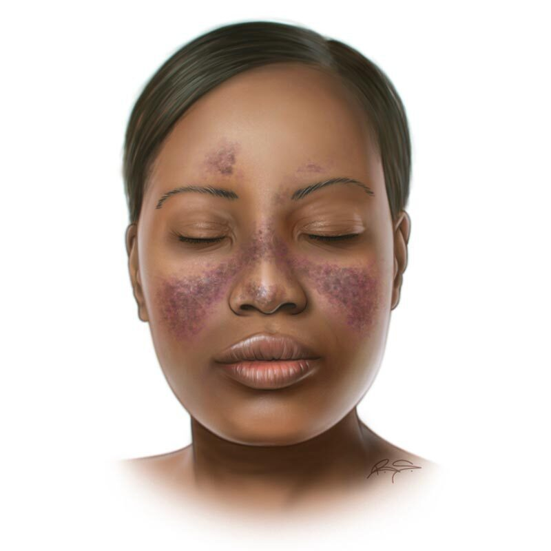 Lupus skin rash on the nose and cheeks of the face.